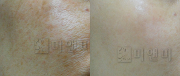피부전반에 분포된 색소치료